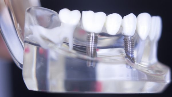 6 Common Myths About Dental Implants Debunked